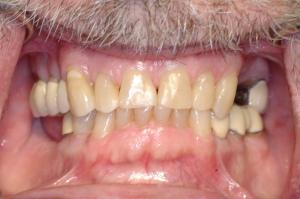 Figure 2--Preliminary photos (2006)