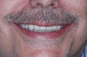 Fig. 3 Smile complete (2012)